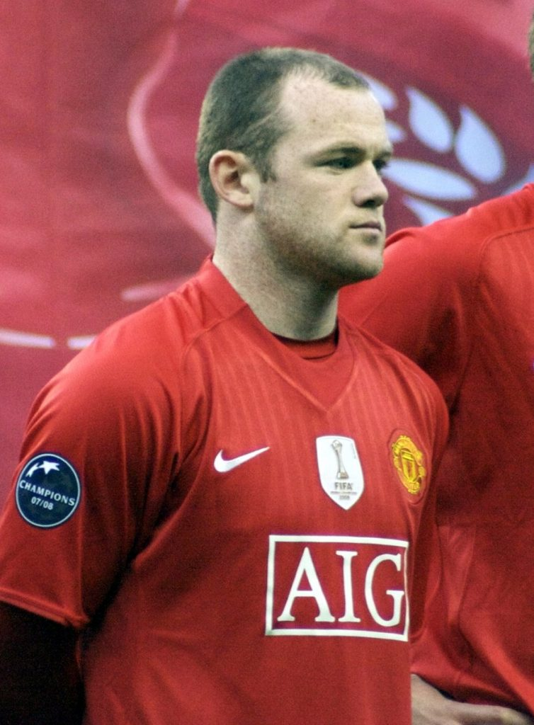 Wayne Rooney went public with his hair loss struggle in 2016. Since then, he has made headlines with his famous hair transplant results. This photo from 2009 shows his hairline recession.